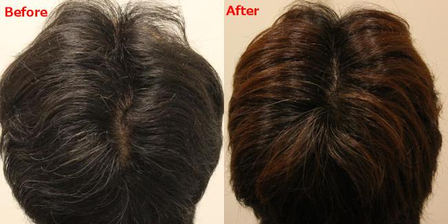AGA治療前と治療後